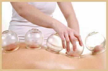 Ventosateràpia, un dels molts tipus de medicina tradicional xinesa